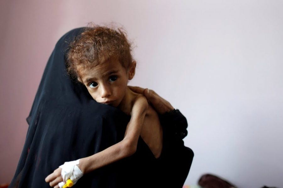 One of millions of starving children in Yemen due to the ongoing humanitarian crisis.